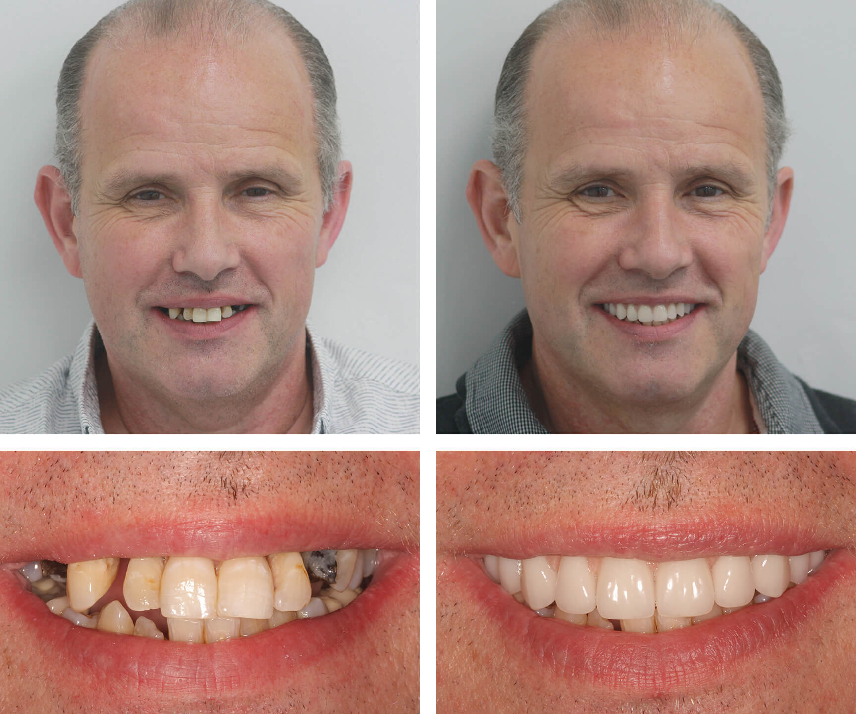 Ebony ivory teeth whitening